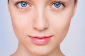 cicatrices del acne no se eliminan